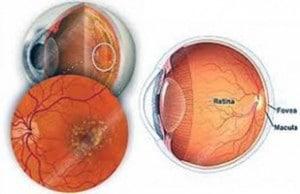 บำรุงสายตา ป้องกันการเสื่อมของตาด้วยอาหารเสริม Target