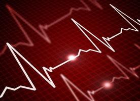 อาการเสี่ยงโรคหัวใจ เหนื่อยง่าย เจ็บหน้าอก อาการโรคหัวใจ