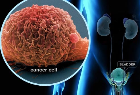 โรคมะเร็ง ที่ผู้ชายชอบเป็นกัน