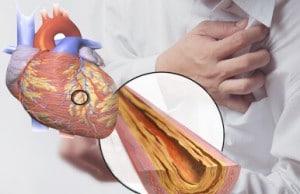 ลดไขมันในเลือดสูงด้วยอาหารเสริมออริซามิน
