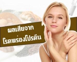 ภาวะขาดโปรตีนหรือโรคพร่องโปรตีน