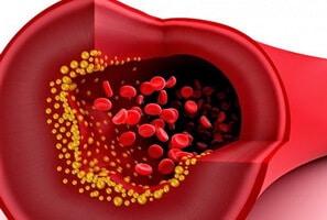 ระบบไหลเวียนเลือด เลือดจาง น้ำเหลือง