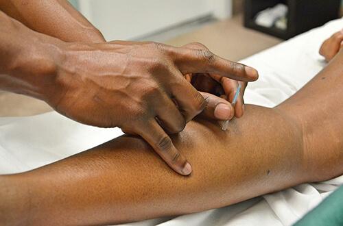 การฝังเข็มช่วยรักษาโรคข้อเข่าเสื่อม ช่วยลดอาการปวดและการอักเสบในข้อเข่าได้