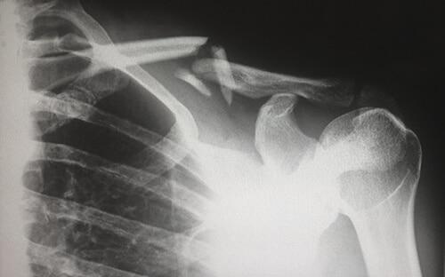 ภาวะกระดูกพรุนทำให้กระดูกหักได้ง่าย