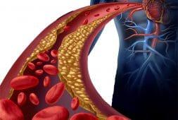 %e0%b8%84%e0%b8%ad%e0%b9%80%e0%b8%a5%e0%b8%aa%e0%b9%80%e0%b8%95%e0%b8%ad%e0%b8%a3%e0%b8%ad%e0%b8%a5-beware-cholesterol