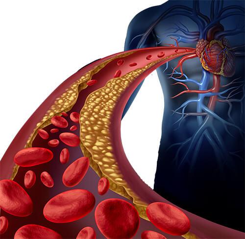 ไขมันในเลือดจะทำให้หัวใจทำงานหนักจนเป็นความดันสูง