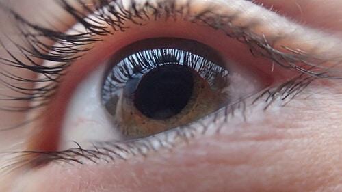 คนเป็นเบาหวานขึ้นตา เสี่ยงตาบอด