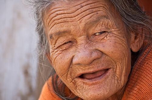 ริ้วรอยบนใบหน้าที่เกิดขึ้นจากช่วงอายุที่มากขึ้น