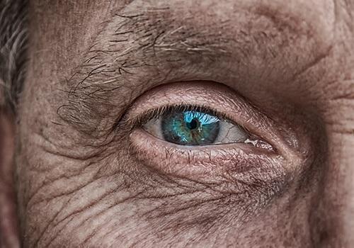 ริ้วรอยบนใบหน้าเกิดจากหลายเหตุหลายปัจจัย