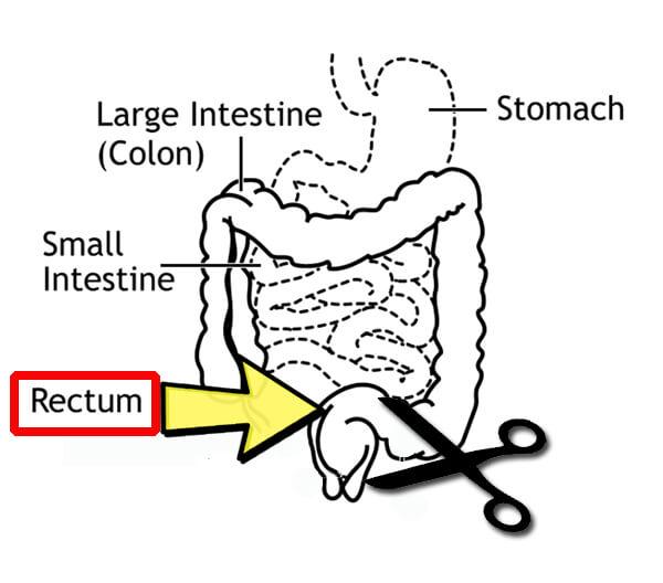 ผ่าตัดโดยเทคนิค total mesorectal excision (TME)  โดยตัดเอาลำไส้ตรงที่เป็นมะเร็งออกให้หมด