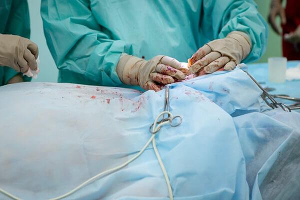 การผ่าตัดเพื่อให้หายจากโรคมะเร็ง