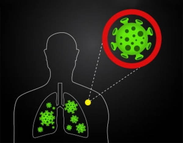 เมื่อติดเชื้อโควิด เชื้อไวรัสกระจายไปทั่วปอด