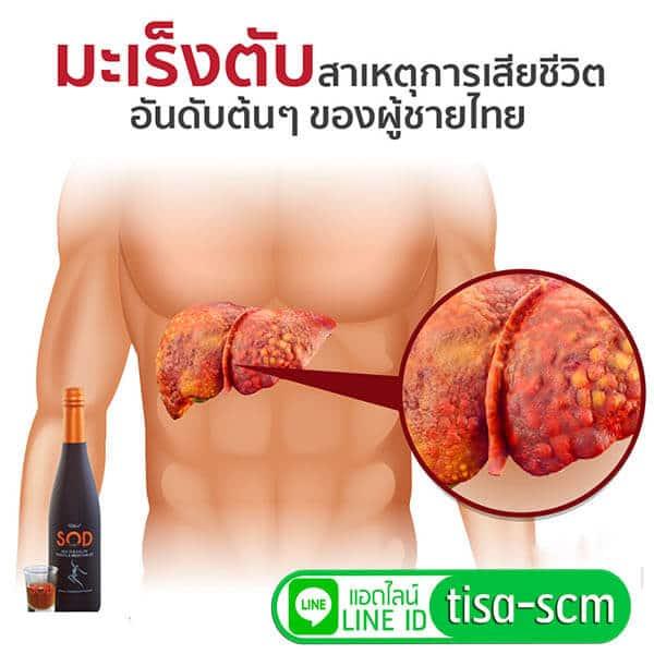 น้ำเอนไซม์ s.o.d ช่วยลดความเสี่ยงโรคมะเร็งตับ