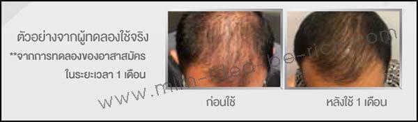 ผู้ทดลองใช้จริง เซรั่มบำรุงผม Bodycheer Hair Hinic 1 เดือน